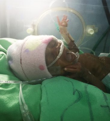Baby W, transferred to Kijabe from a closed government hospital.