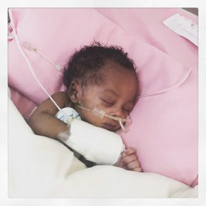 Joseph, healing from gastroschisis